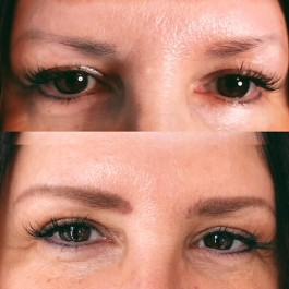 Microblading & 3D Powdered Brows Before & After