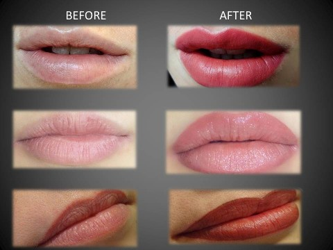 Lip Collage Before and After