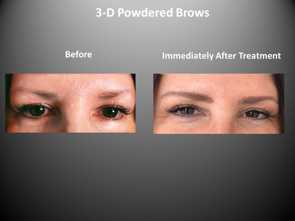 3-D Powered Brows