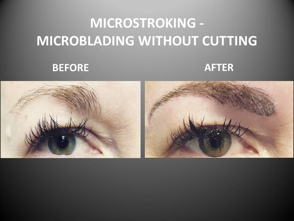 Microstroking