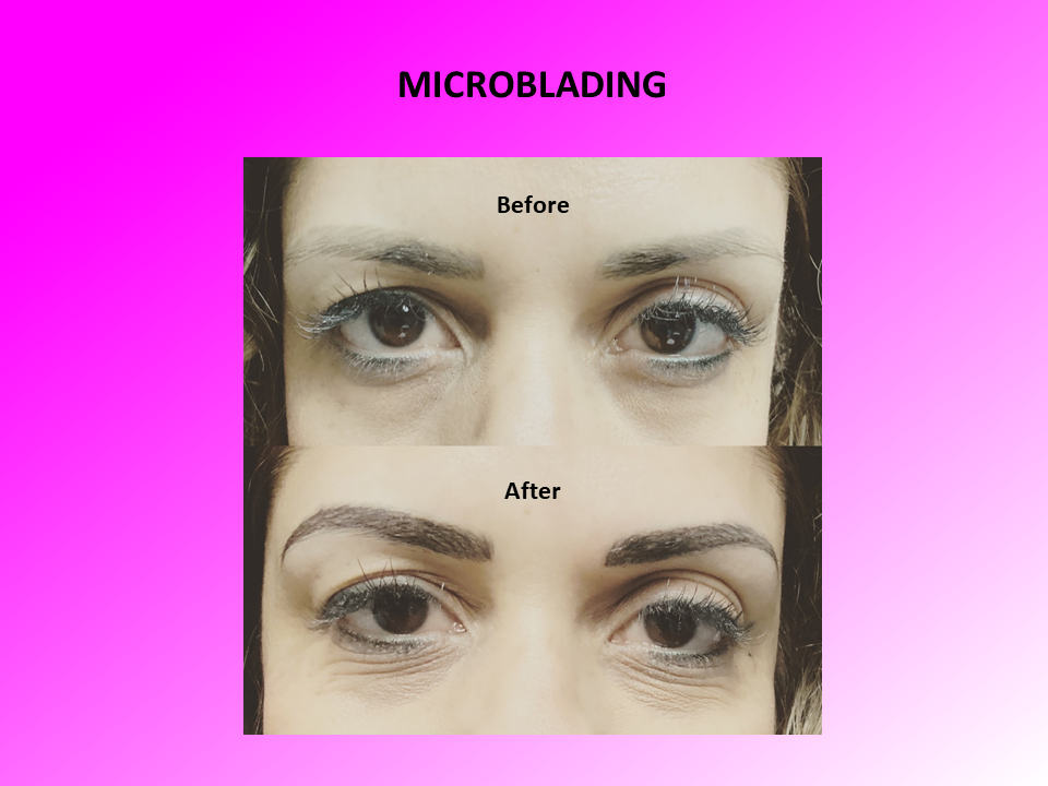 Alternative View of Microblading Before and After