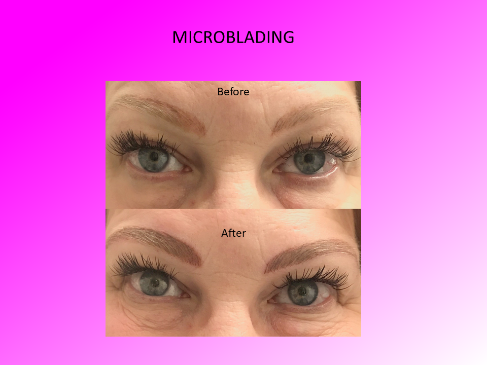 Close Up of Microblading Comparison