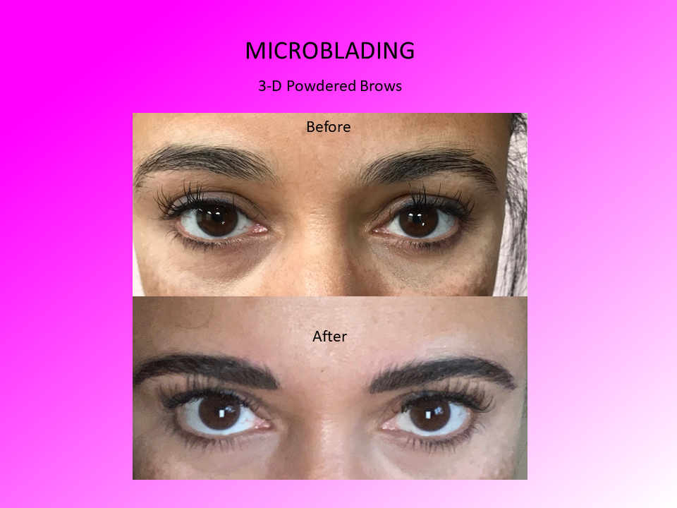 3-D Powered Brows Before and After