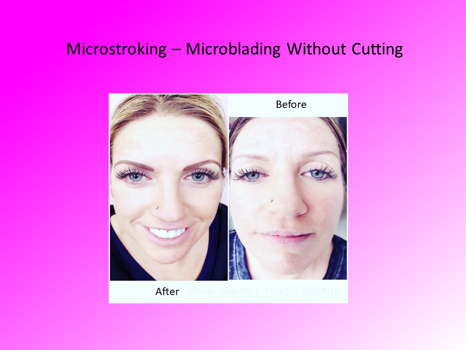 Microstroking - Microblading without Cutting Comparison Photo