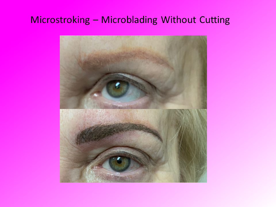 Left Eye Close Up of Microstroking