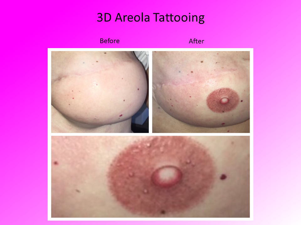 3D Areola